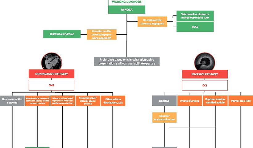 Diagnostic pathways for myocardial infarction